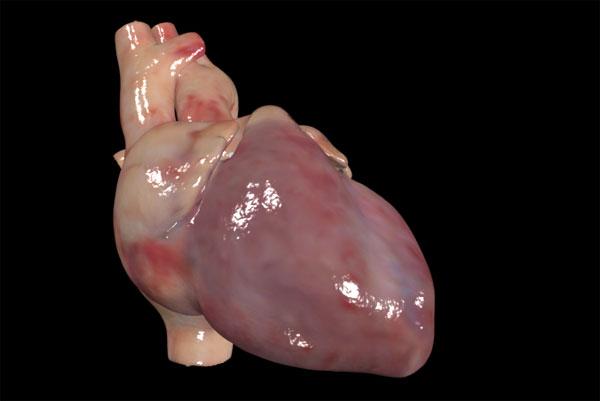 Heart_SL_1